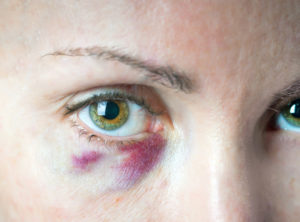 bruise under an eye. Cosmetology. The prick got to a vessels