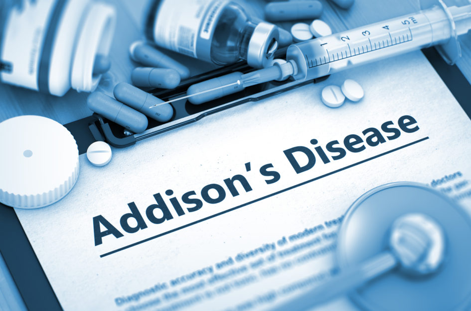 addison's disease uncovered by tommy smith - refine and renew, Human body