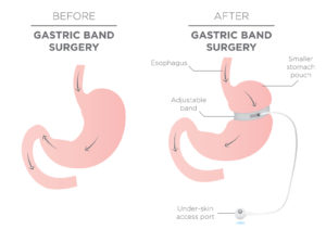 Gastric Band for Weight Loss.  If you Tighten or Loosen it, It L
